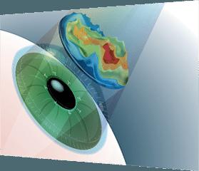 LASIK las vegas at Wellish Vision