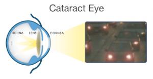 cataract surgery las vegas